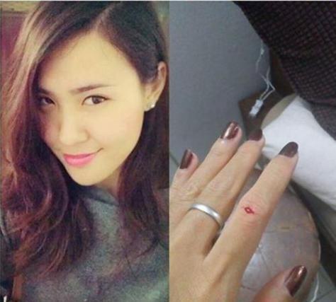 Cô gái xinh đẹp Trinh Dương và bàn tay nhỏ nhắn rướm máu