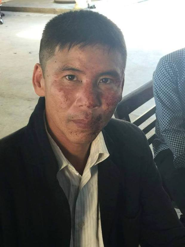 Anh Nguyễn Trung Trực